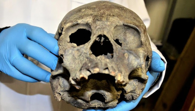 Reconstructing ancient skulls in Tiahuanaco, Bolivia