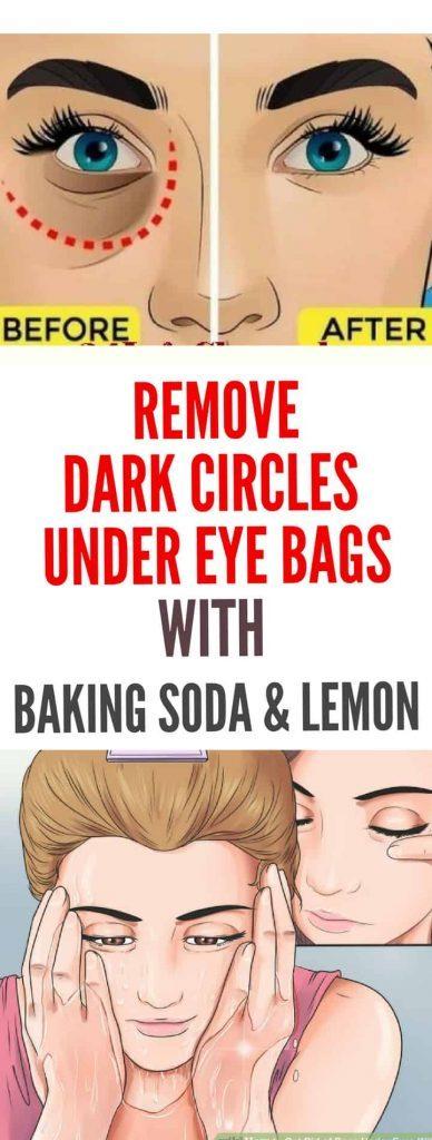 KrobKnea: Remove Dark Circles & Under Eye Bags & Baking ...