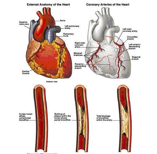 Petua Cara Pulihkan Jantung Tersumbat