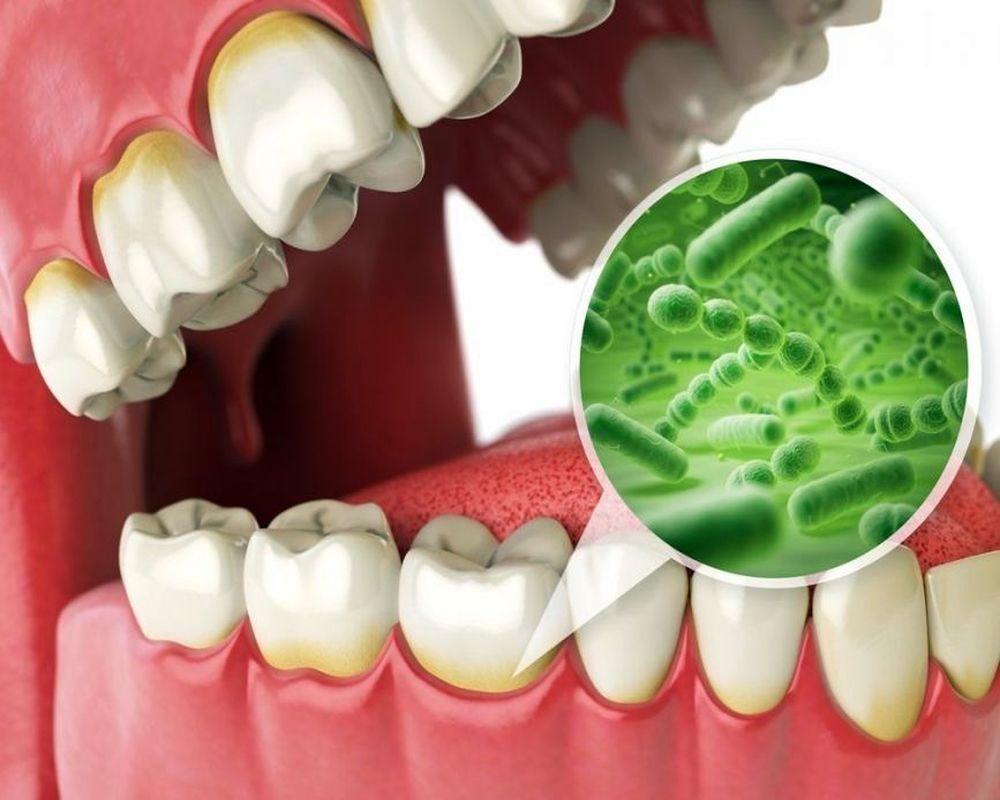 Infección Oral