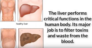 The effects of Hepatitis C on the liver