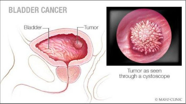 Gejala dan Penyebab Kanker Kandung Kemih, Hati-hati Nyeri di Punggung