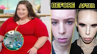 150KG | Women died of weight loss