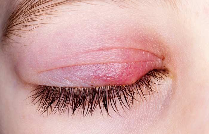 Ursachen von Schuppen auf Wimpern und Augenbrauen sparen