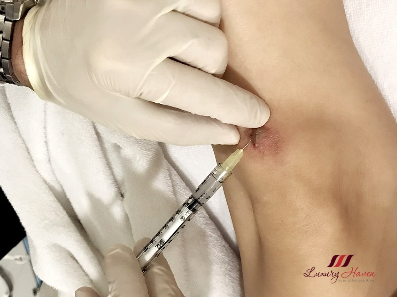 eha clinic steroid injection scar treatment
