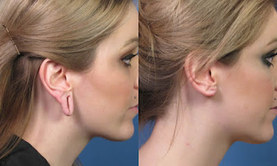 Ear hole correction in Specialist Cosmetic Centre