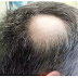 If you have hair loss problem then you must read these 8 reasons why it happens?