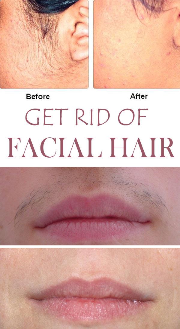 6 facial masks that help you get rid of unwanted facial hair