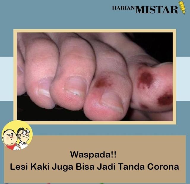 Lesi Jadi Gejala Virus Corona-IGTharianmistar