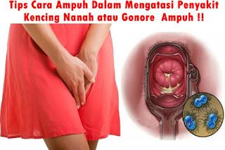 Image of Pencegahan penyakit kelamin kencing nanah dengan obat tradisional