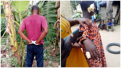 Photos: Father Cuts Off Son's Ear, Burns His Fingers For Stealing His Money
