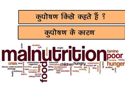 कुपोषण किसे कहते हैं? |कुपोषण के कारण | Reason of Malnutrition in Hindi