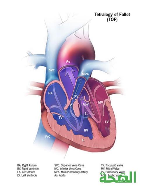 رباعية فالو - التشخيص والعلاج