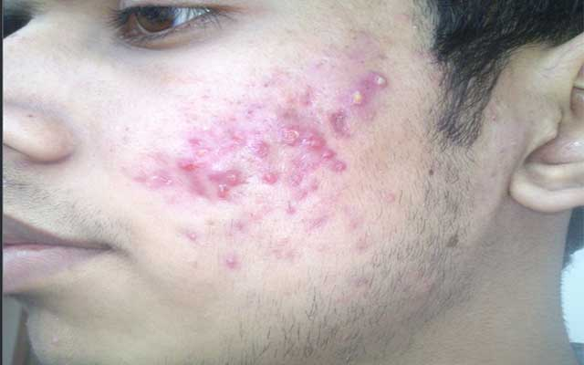5 Ways to Remove Pimple Scars Without Surgery