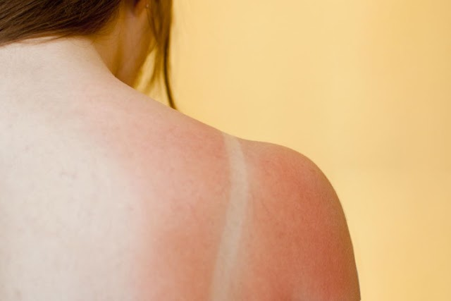 How to successfully treat sunburn