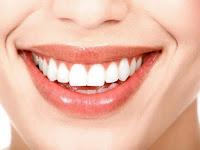 Cara Memutihkan Gigi Dengan Tepat Dan Mudah