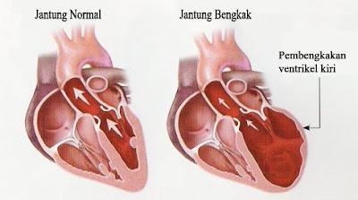Obat Jantung Bengkak Tradisional