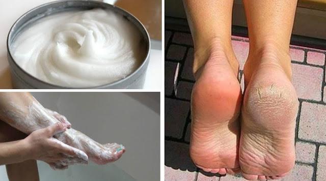 Traitement intéressant du lait et du bicarbonate pour des pieds lisses et beaux