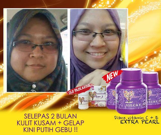 Nano Lightener Cream Dianz Pixy / Dian Vitamin C & E Extra Pearl / Nano Removal Cream Murah - Hair Removal