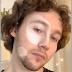 Vitiligo filter On instagram, begini cara mendapatkannya