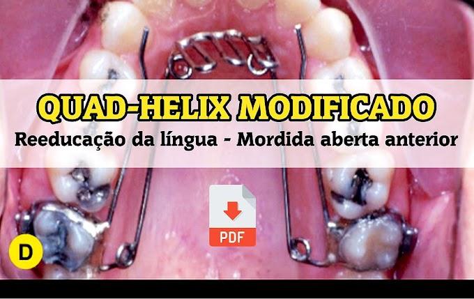 PDF: QUAD-HELIX MODIFICADO na reeducação da língua em casos de mordida aberta anterior