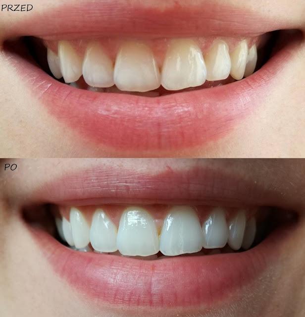 wybielanie zębów efekty
