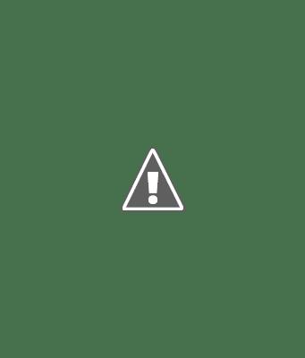 migraine headache causes symptoms treatment