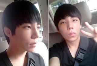 14 hari sesudah operasi plastik mata, operasi plastik hidung, anti aging di Wonjin