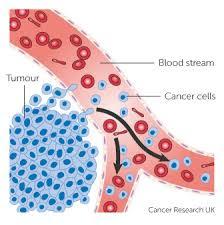 cancer ka gharelu elaj