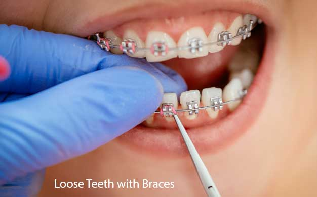Loose Teeth with Braces