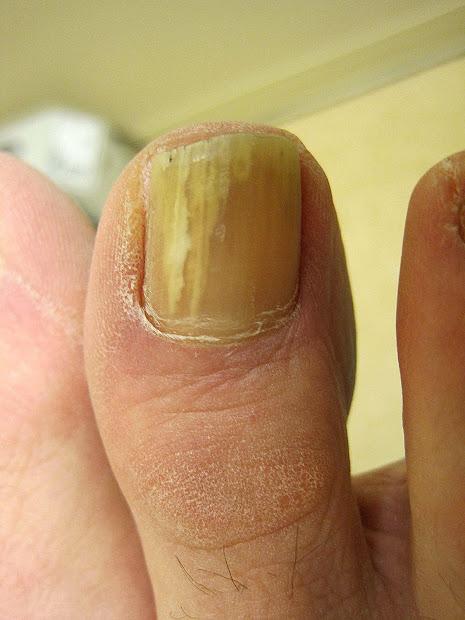 yellow toenails and diabetes
