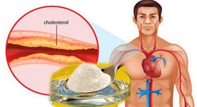 Murah Meriah, 7 Bahan Alami Ini Ampuh Usir Kolesterol Selamanya Dalam Tubuhmu