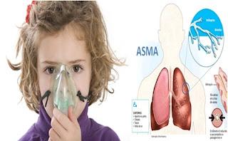 obat alami asma