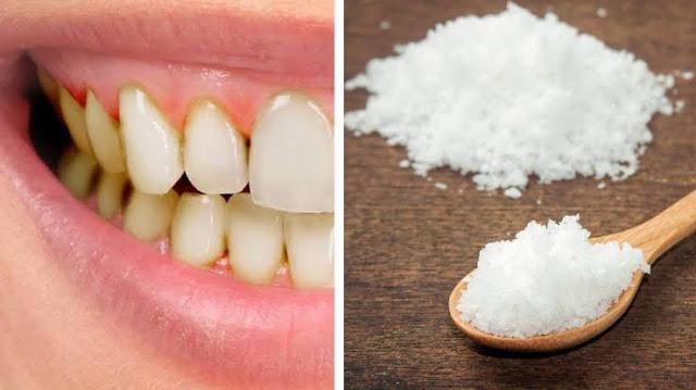 10 Cara Menghilangkan Karang Gigi Dengan Garam Dapur