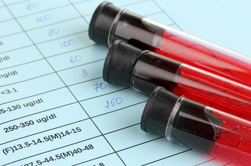 HIV-research-512.jpg