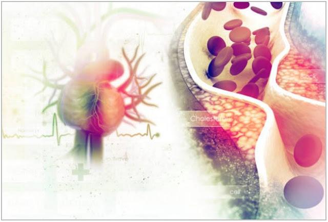 Kolesterol dan Cara Berhitungnya;