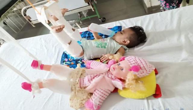 गुड़िया के इलाज के बाद ही बच्ची ने करवाया अपना इलाज - newsonfloor.com