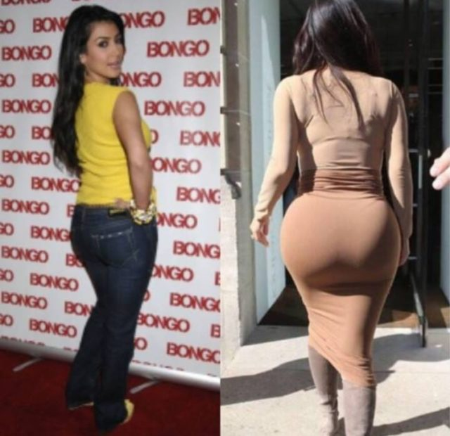 Dr Miami Refuses To Give Kim Kardashian Another Butt Shot Take Your Ass To Colombia