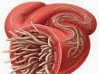 Penyebab dan gejala Cacingan
