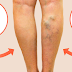 HOW TO REMOVE VARICOSE VEINS USING THE MAGIC OF OLIVE OIL