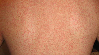 Measle-like patches affecting the patient's trunk, specifically the back area mono rash images
