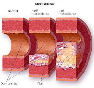 bahaya kolesterol, tanda-tanda kolesterol, cara kurangkan kolesterol