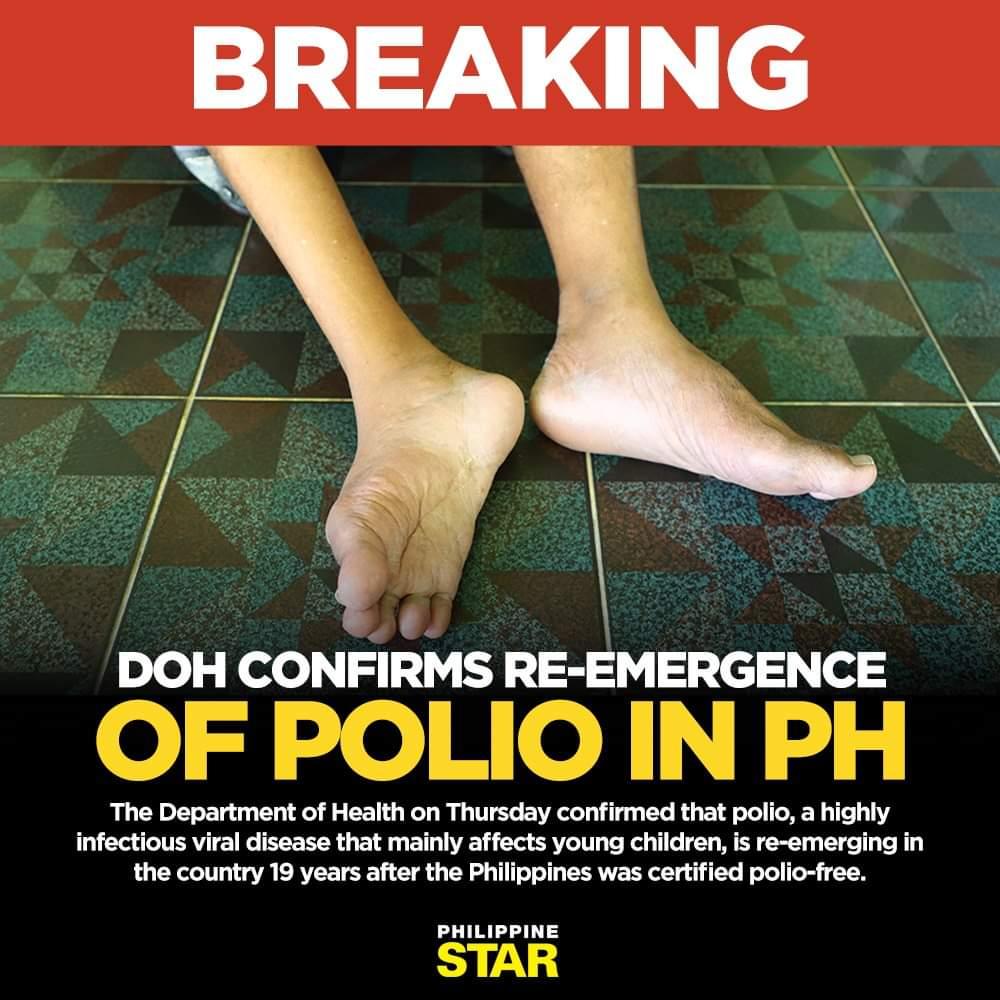Polio, Philippines