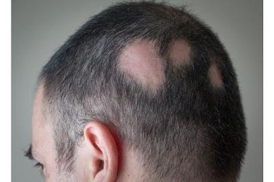 Saçkıran Nedir ? Saçkıran Neden Olur ? Saçkıran Belirtileri Nelerdir ? Saç Kıran Tedavisi Nasıl Olur ? Saçkırana Ne İyi Gelir ? Saçkıran Bulaşıcı mıdır ? Saçkıran Nasıl Bulaşır ? Saçkırandan Nasıl Korunulur ? Alopesi Areata Nedir ?