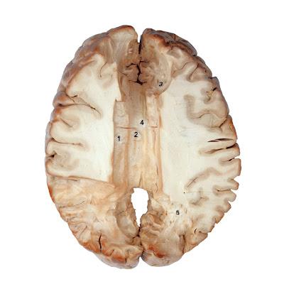 Corpus Callosum of Plastinated Human Brain Specimen