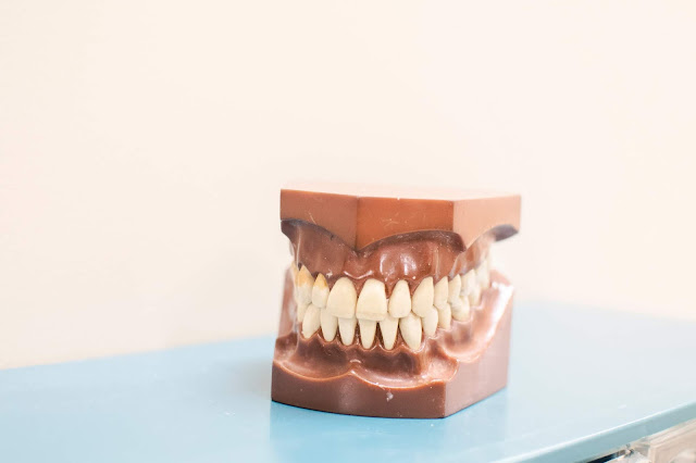 dentures Photo by Nhia Moua on Unsplash