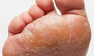 Mantar hastalığı nasıl oluşur