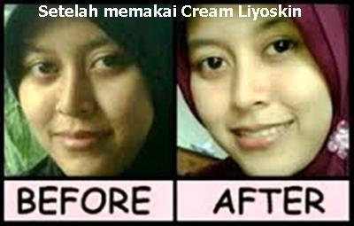 Nama Cream Penghilang Flek Hitam