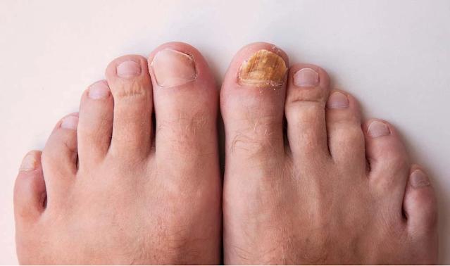 Traitement maison pour soigner le pied d'athlète et le champignon de l'ongle