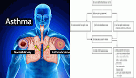 Information On respiratory illness